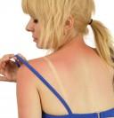 кожа и ультрафиолет