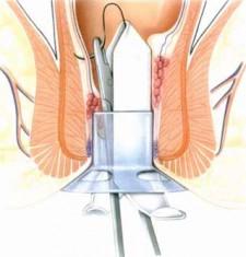 Картофель при лечении анальной трещины