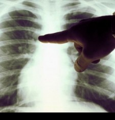 _a_close_up_of_a_lung_X-ray_30
