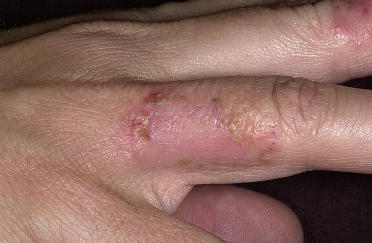 Средства для лечения дисбактериоза кишечника микрофлоры